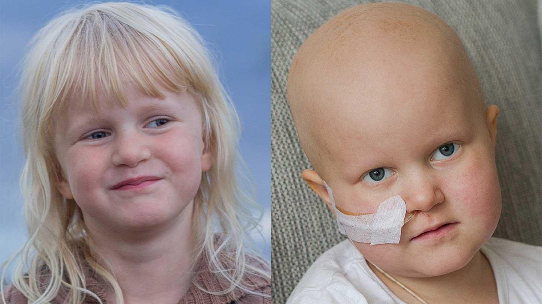 Frisk Juva och kortisonsvullen, kal Juva - svårt att tro att det är samma barn